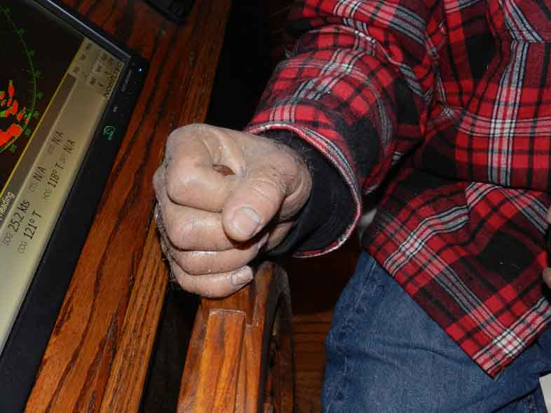 hand-2